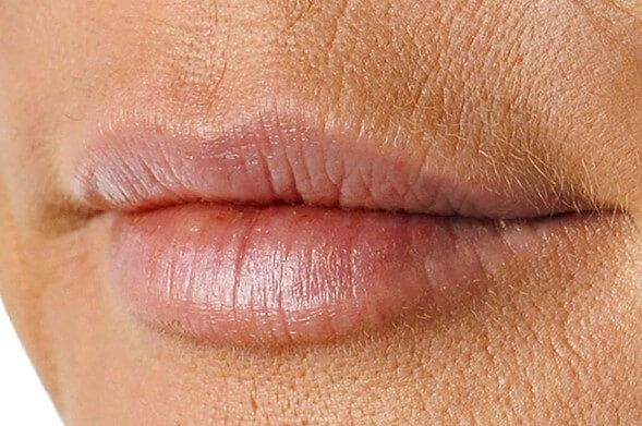 Как убрать кисетные морщины над верхней губой с помощью ботокса, микротоковой терапии, в домашних условиях