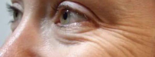 Специальные упражнения от морщин вокруг глаз