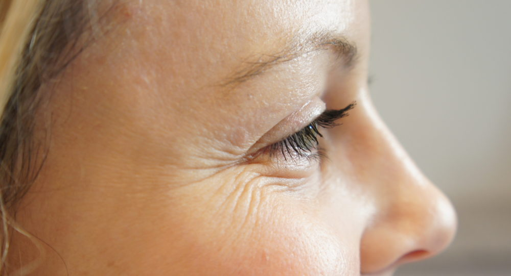 Как убрать гусиные лапки вокруг глаз или незаменимое оружие молодости для каждой женщины
