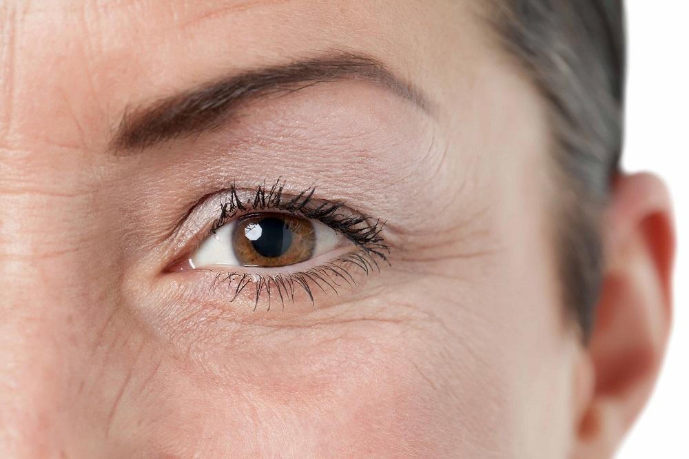 Как можно эффективно убрать морщины под глазами