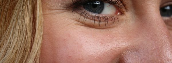 Убиваем морщины вокруг глаз в домашних условиях