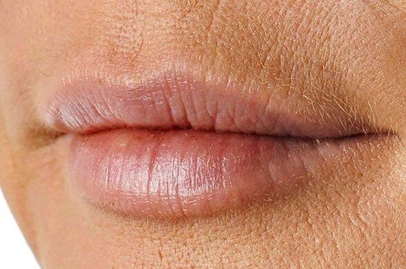 морщины над верхней губой